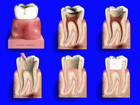 wisdom how teeth does without getting much cost removal insurance