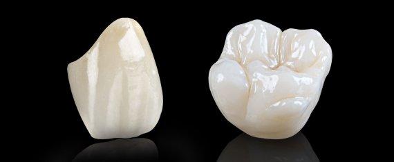 Dental Crowns Cosmetic Dental Lab Dr Daniel Wahba Lutz