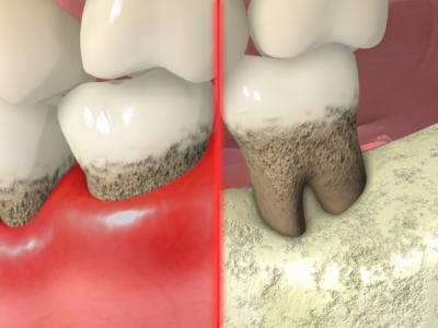 periodontal treatment dr daniel wahba lutz dentist land o lakes dentist. Black Bedroom Furniture Sets. Home Design Ideas